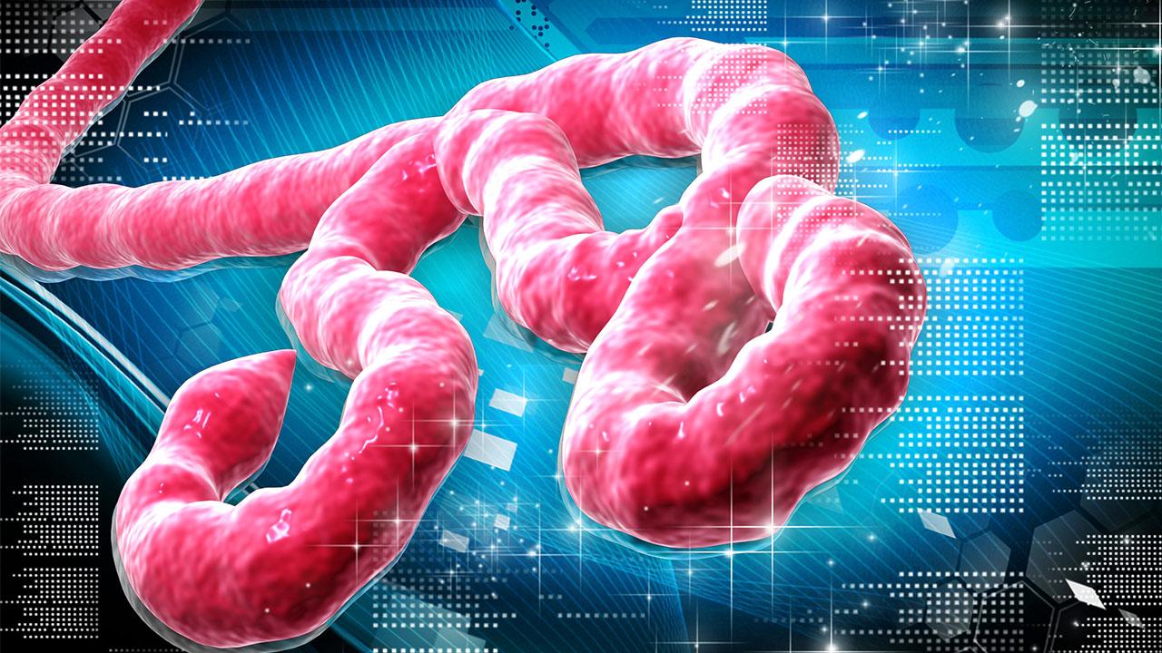 Virus del Ébola: ¿Deberíamos preocuparnos?